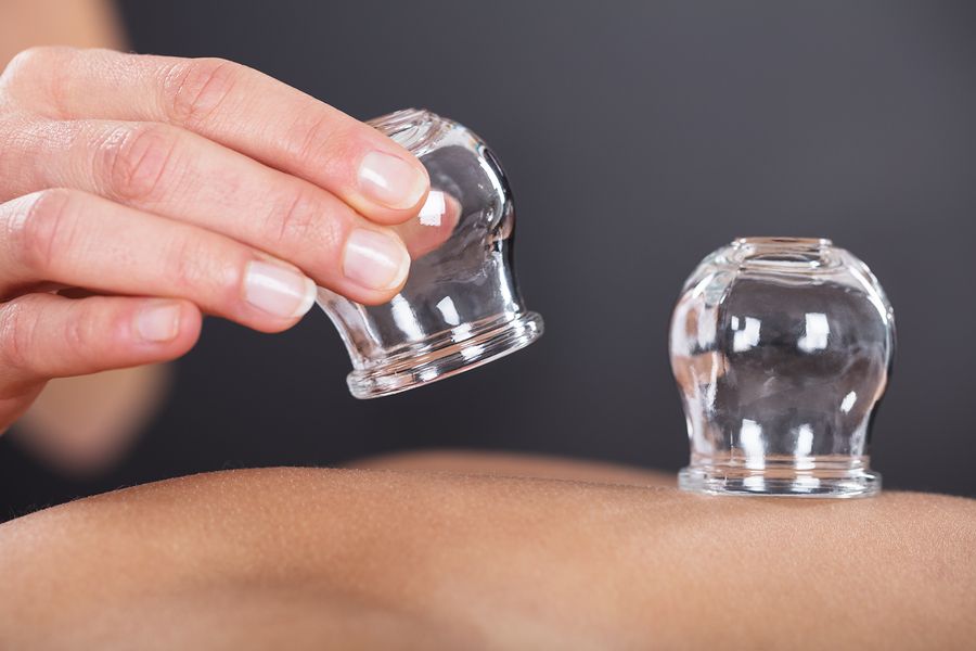 Cupping_Acupuncture_900x600